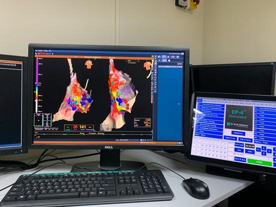 Система віртуальної навігації та електроанатомічного картування Abbott NavX Precision